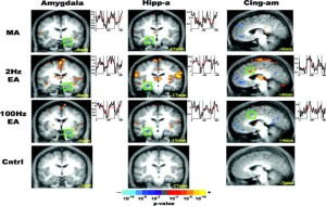 Changes in brain activity during acupuncture on MRI